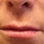 New Lips Shea Kaplan, PA-C