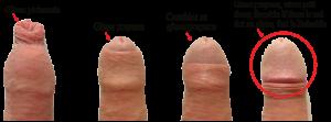 man-circumcised vs uncircumcised